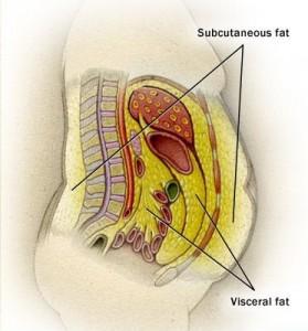vi1sceral-fat1